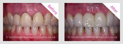 Case Studies - London Dental Implants Studio
